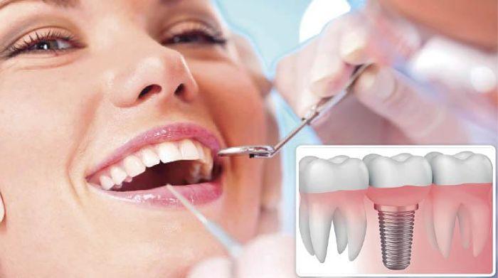 El proceso de colocación es muy sencillo según el odontólogo consiste en dos fases