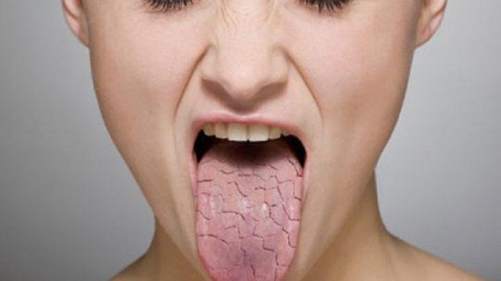sindrome de chongren