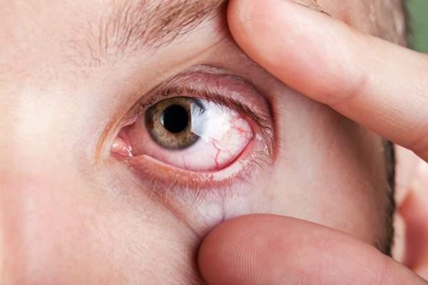 sindrome del ojo seco