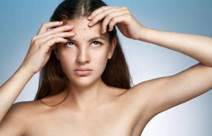 crema con dexpantenol para combatir el acné